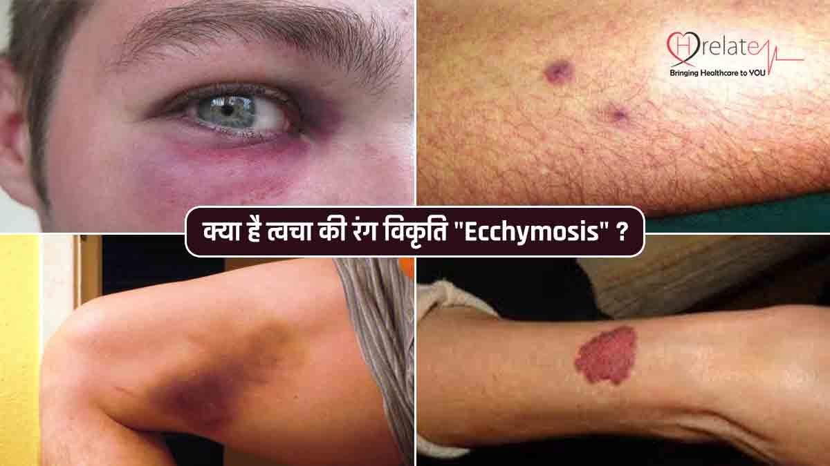 Ecchymosis in Hindi