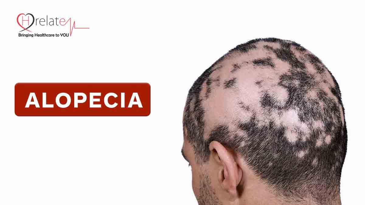 Alopecia Disease