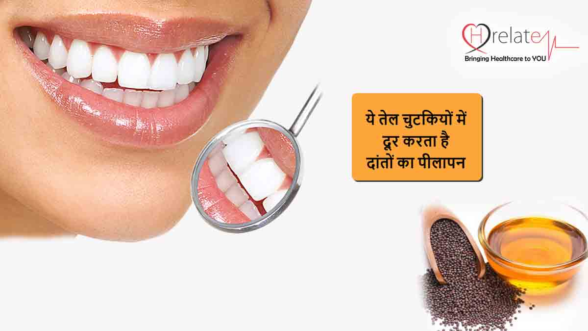 Mustard Oil for Teeth Whitening