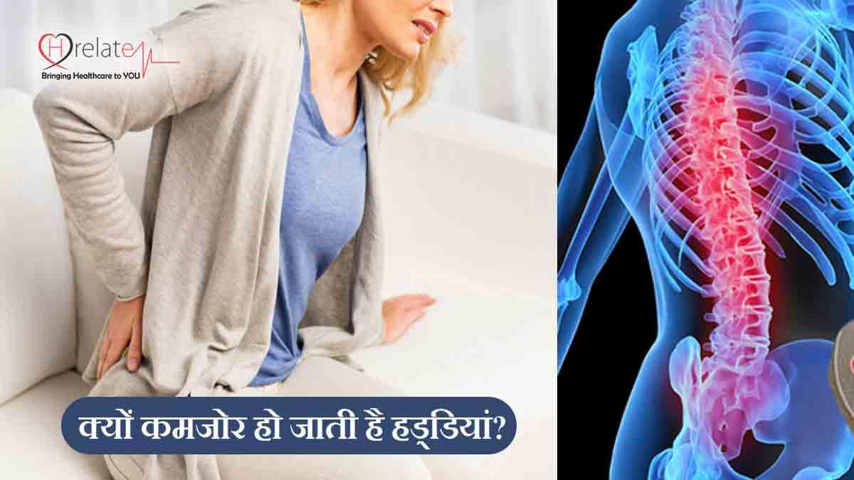 Weak Bones Causes