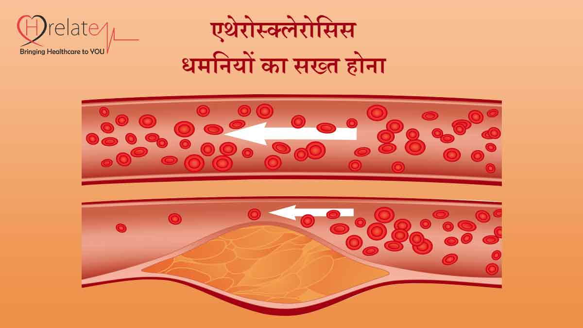Atherosclerosis in Hindi