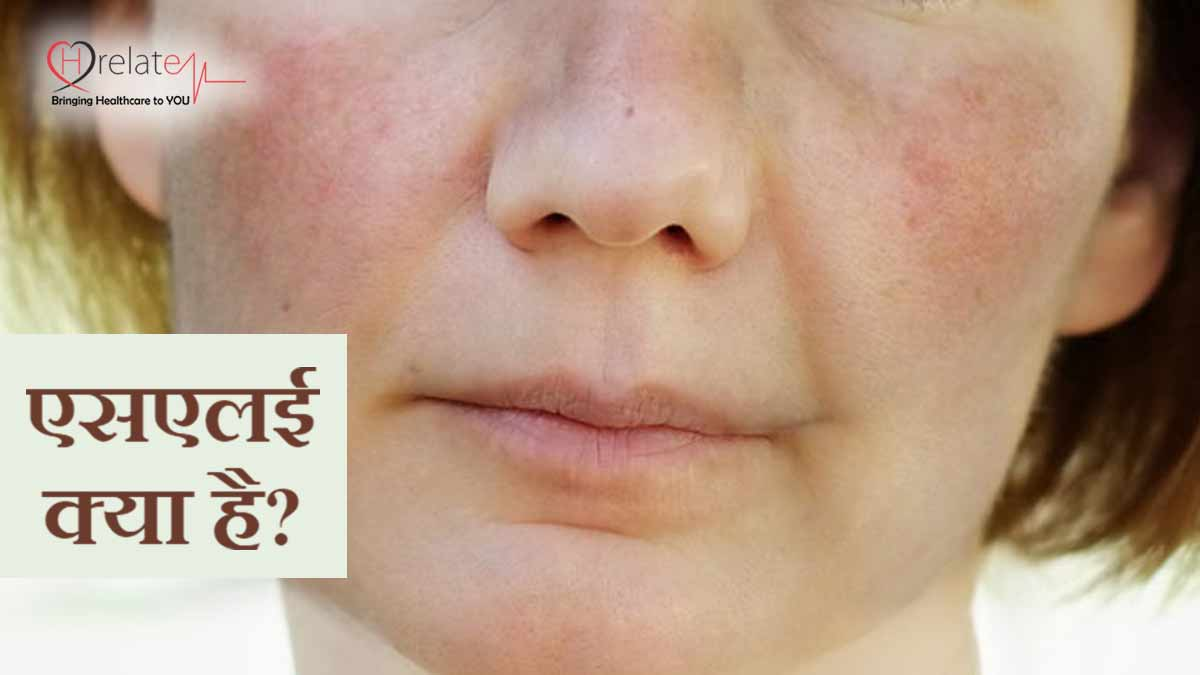 Systemic Lupus Erythematosus in Hindi