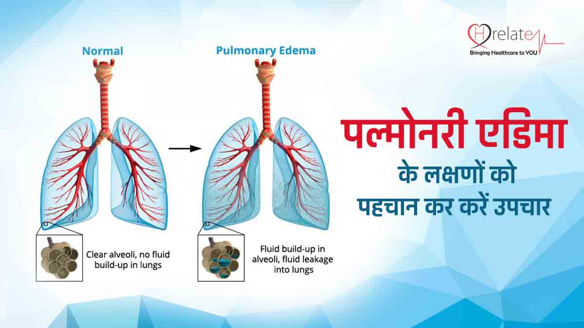 Pulmonary Edema in Hindi