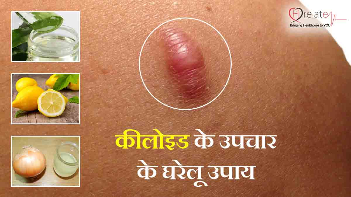 Home Remedies for Keloids in Hindi