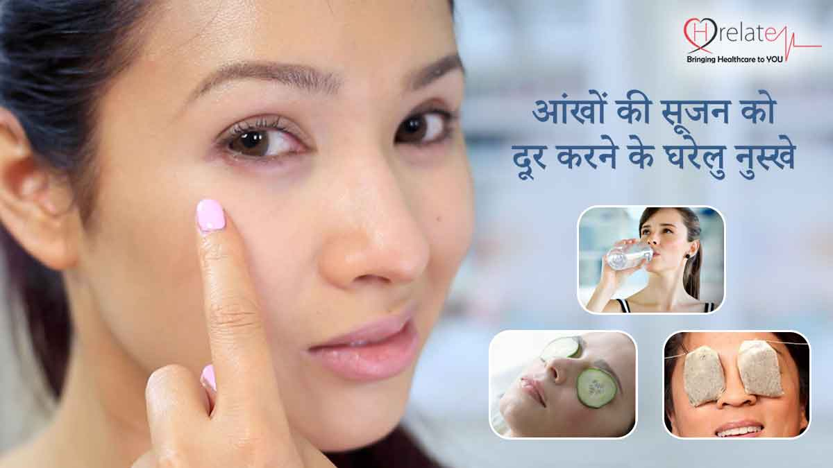 Home Remedies for Puffy Eyes in Hindi
