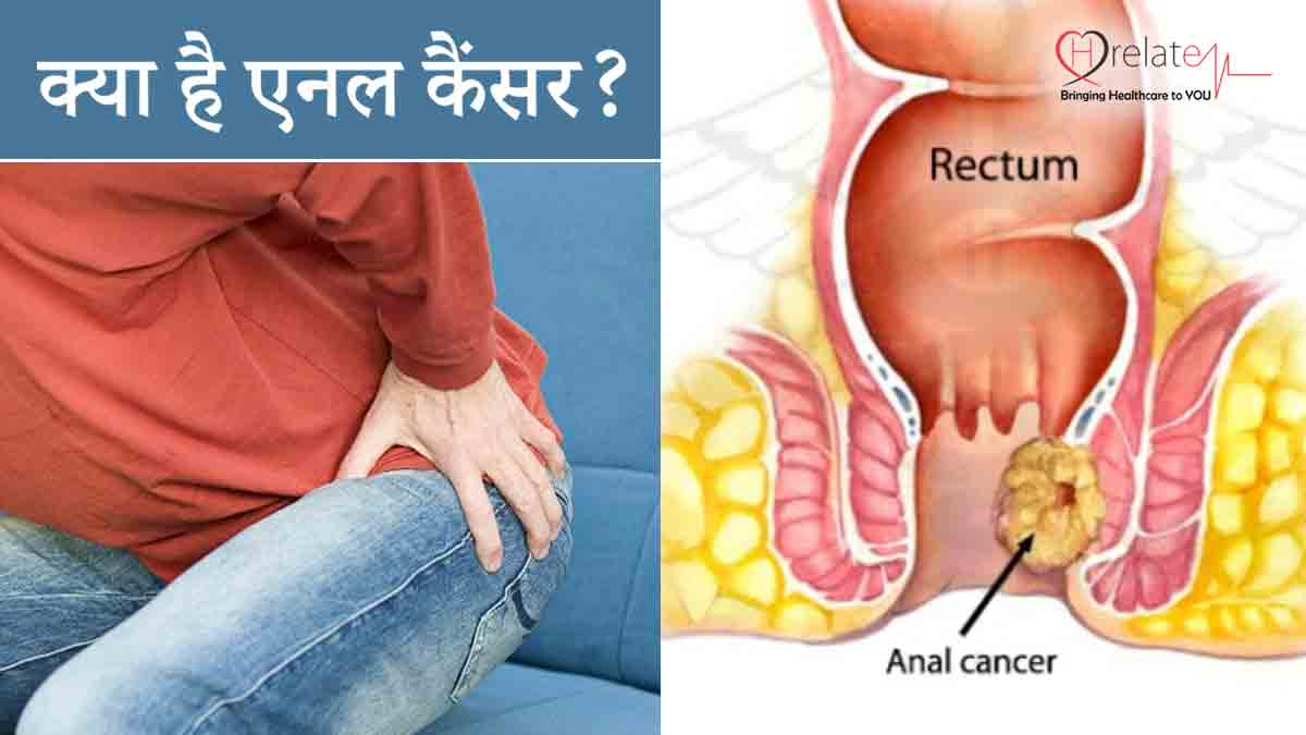 Anal Cancer in Hindi