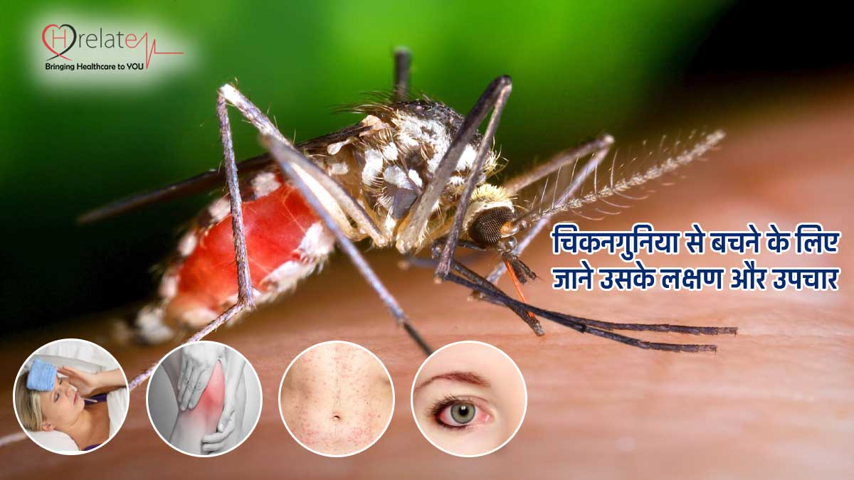 Chikanguniya Symptoms in Hindi